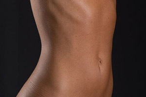 f-liposuction