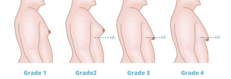 Breast reduction liposuction in colorado