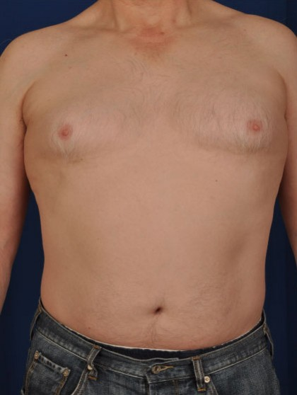 Gynecomastia Before & After Patient #2932