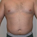 VASER Hi Def Liposuction Before & After Patient #2844