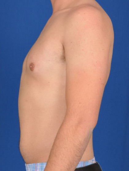 Gynecomastia Before & After Patient #2935