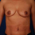 VASER Hi Def Liposuction Before & After Patient #3077