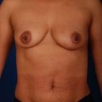 VASER Hi Def Liposuction Before & After Patient #3077