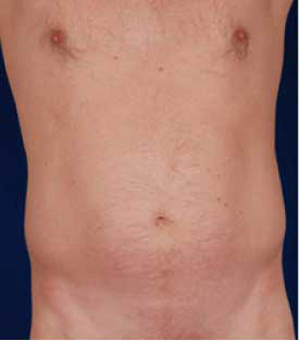 VASER Hi Def Liposuction Before & After Patient #2866