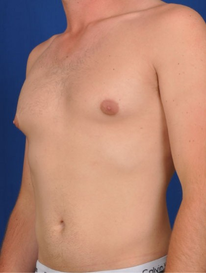 Gynecomastia Before & After Patient #2944