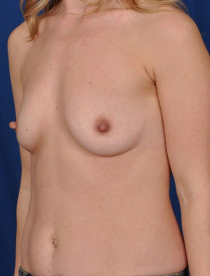 Breast Augmentation Before & After Patient #2981