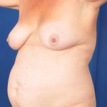 Tummy Tuck Before & After Patient #3080
