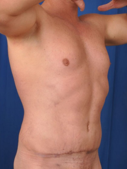 VASER Hi Def Liposuction Before & After Patient #2855