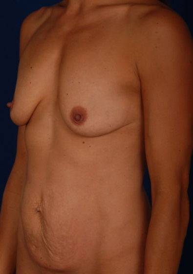 Tummy Tuck Before & After Patient #3084