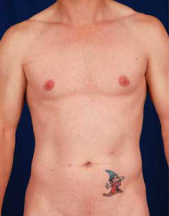 VASER Hi Def Liposuction Before & After Patient #2872