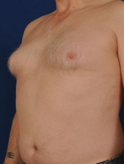 Gynecomastia Before & After Patient #2947