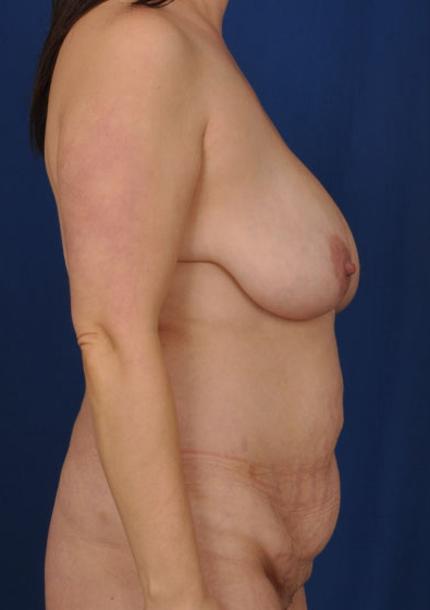 VASER Hi Def Liposuction Before & After Patient #3087