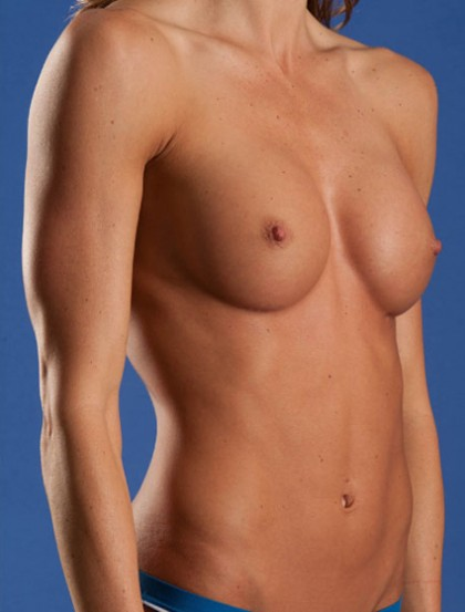 Breast Augmentation Before & After Patient #2986