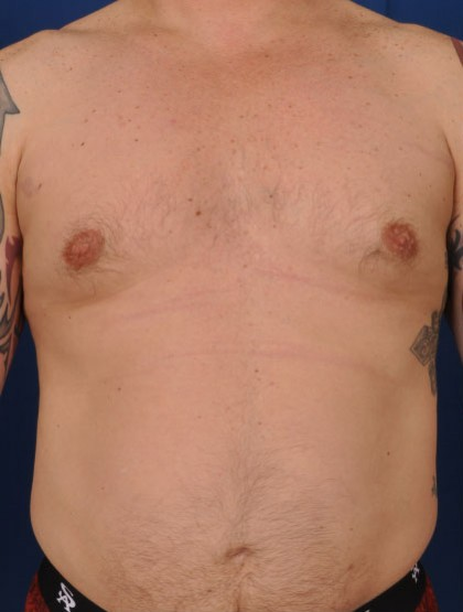 Gynecomastia Before & After Patient #2952