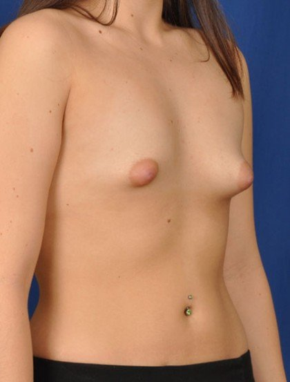 Breast Augmentation Before & After Patient #2991