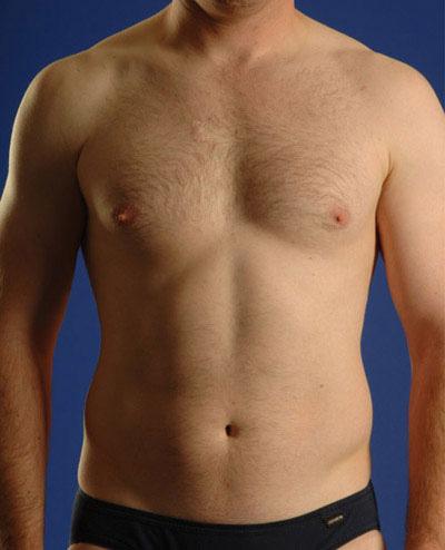 VASER Hi Def Liposuction Before & After Patient #2875