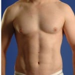 VASER Hi Def Liposuction Before & After Patient #2875