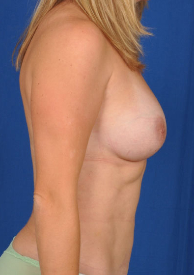 Breast Augmentation Before & After Patient #5666