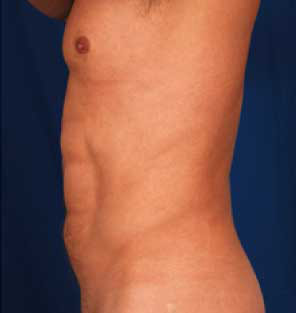 VASER Hi Def Liposuction Before & After Patient #2890