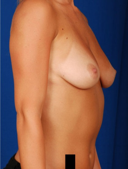 Breast Augmentation Before & After Patient #2998