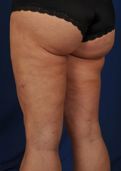 Legs Liposuction Before & After Patient #3097