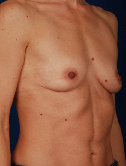 Breast Augmentation Before & After Patient #2973