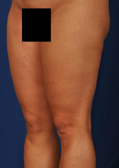 VASER Hi Def Liposuction Before & After Patient #3097