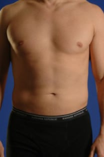 VASER Hi Def Liposuction Before & After Patient #2882
