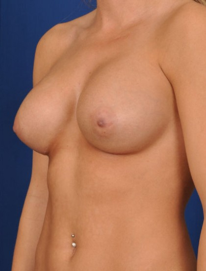 Breast Augmentation Before & After Patient #3003