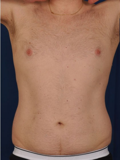 VASER Hi Def Liposuction Before & After Patient #2900