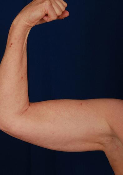 VASER Hi Def Liposuction Before & After Patient #3108