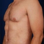 VASER Hi Def Liposuction Before & After Patient #2908
