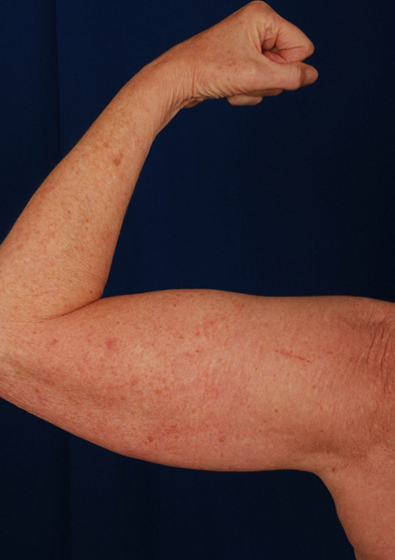Arms Liposuction Before & After Patient #3113