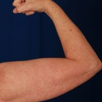 VASER Hi Def Liposuction Before & After Patient #3113