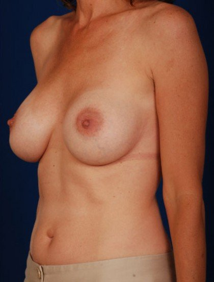 Breast Augmentation Before & After Patient #3022