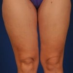 VASER Hi Def Liposuction Before & After Patient #3118