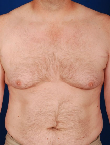 VASER Hi Def Liposuction Before & After Patient #2915