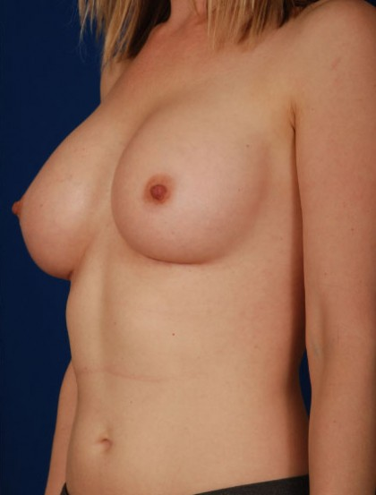 Breast Augmentation Before & After Patient #3027