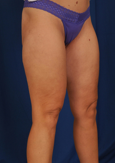Legs Liposuction Before & After Patient #3118