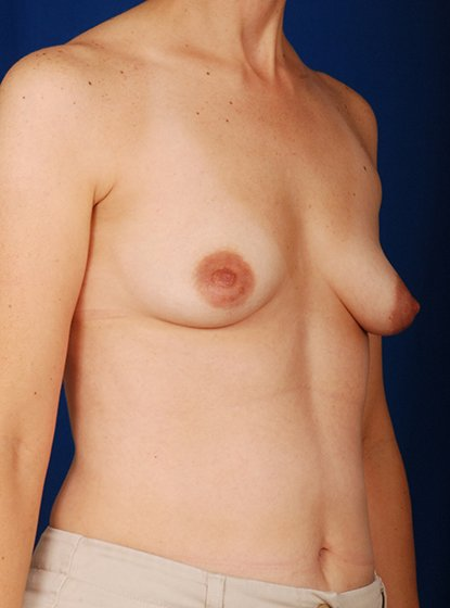 Breast Augmentation Before & After Patient #3044