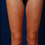VASER Hi Def Liposuction Before & After Patient #3129