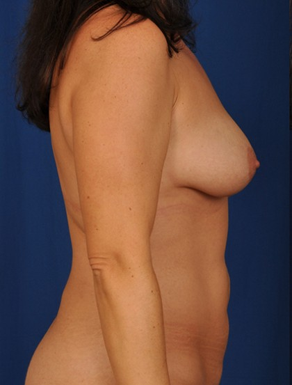 Breast Augmentation Before & After Patient #3049