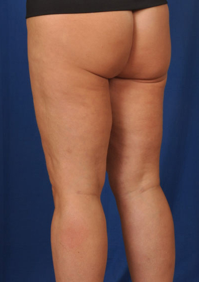 VASER Hi Def Liposuction Before & After Patient #3136