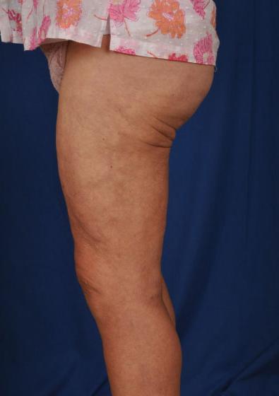 VASER Hi Def Liposuction Before & After Patient #3143