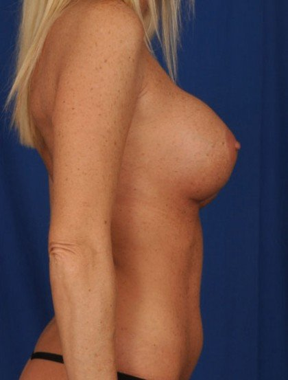 Breast Augmentation Before & After Patient #3054