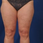 Legs Liposuction Before & After Patient #3143