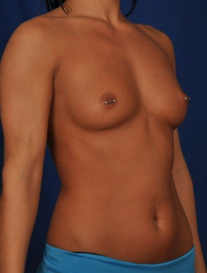 Breast Augmentation Before & After Patient #3059
