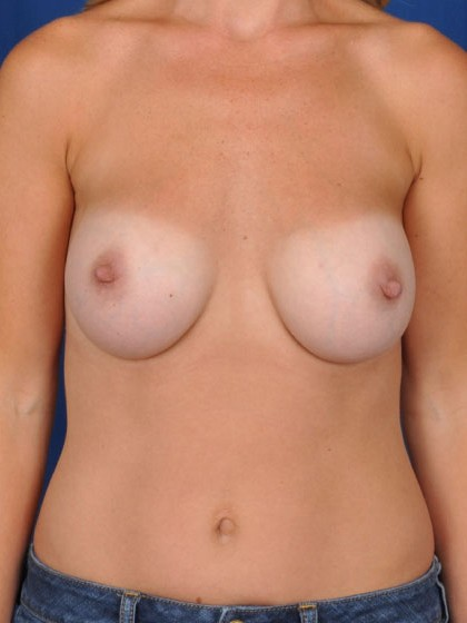 Breast Augmentation Before & After Patient #3066