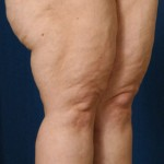 VASER Hi Def Liposuction Before & After Patient #3156