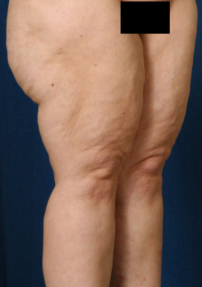 Legs Liposuction Before & After Patient #3156